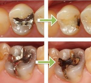 2次虫歯の写真