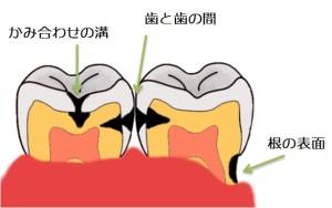 虫歯の始まり