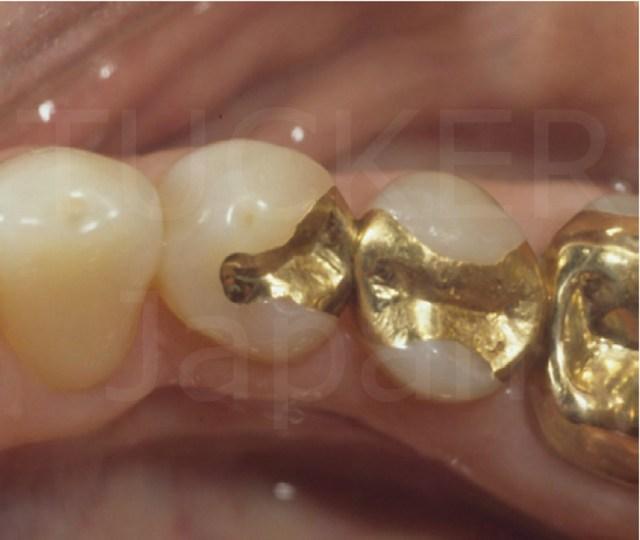 相場 虫歯 治療